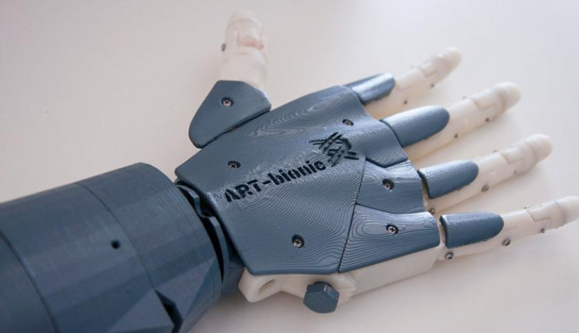 Студенты из Владивостока разработали бионический протез руки