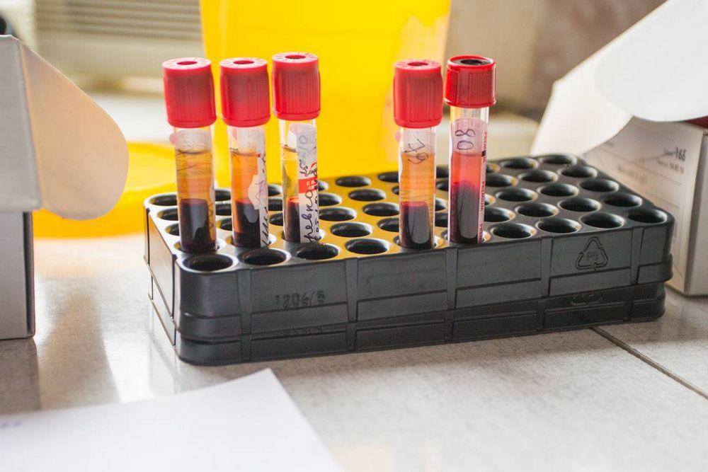 Ученые Владивостока нашли спасенье от энцефалита
