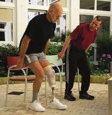 Фото: freepik.com   Подготовьте культю к ношению протеза