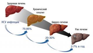 Фото: freepik.com   Определение острой инфекции ВГС