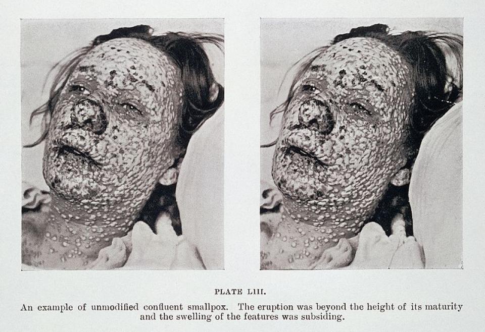Врач из Приморья «пробудила» болезнь из Средневековья